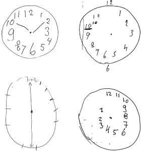clock-drawing-test-dementia